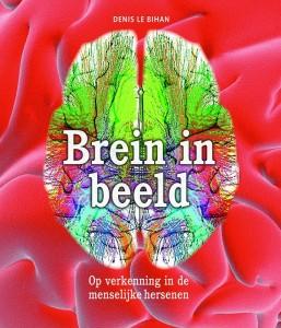 brein in beeld